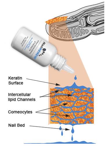 nail renew fungal formula