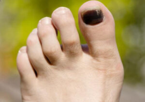 Black Toenail Fungus review